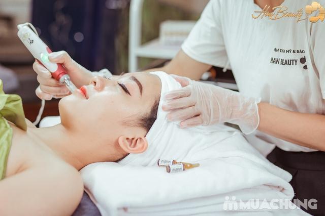 Vi kim Công nghệ Baby Smooth Peeling cao cấp Viện thẩm mỹ và đào tạo Han Beauty - 4