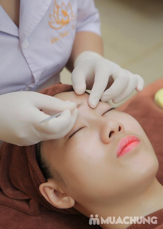 Trị mụn công nghệ độc quyền hết thâm, hết viêm tại Lotus Beauty - Cosmetics - 9