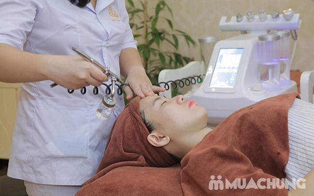 Trị mụn công nghệ độc quyền hết thâm, hết viêm tại Lotus Beauty - Cosmetics - 8