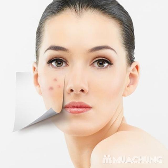 Trị Mụn, Trị sẹo rỗ cam kết hiệu quả tại Nacharm spa - 9