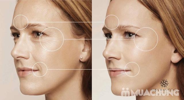 Hồi sinh da mặt bằng máy công nghệ Mỹ tại Viện Thẩm mỹ Công nghệ cao Hiền Anh - 12