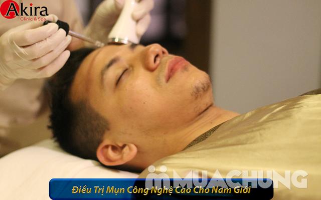 Ứng dụng 10 bước trong điều trị mụn cấp độ từ vừa đến nặng tại Akira Clinic Spa  - 11