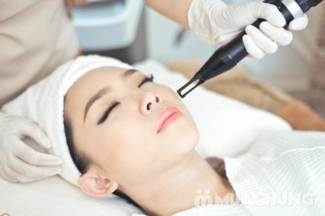 Phi kim trẻ hoá làn da, loại bỏ vết thâm mụn tại Lala Beauty and Nail Spa - 8