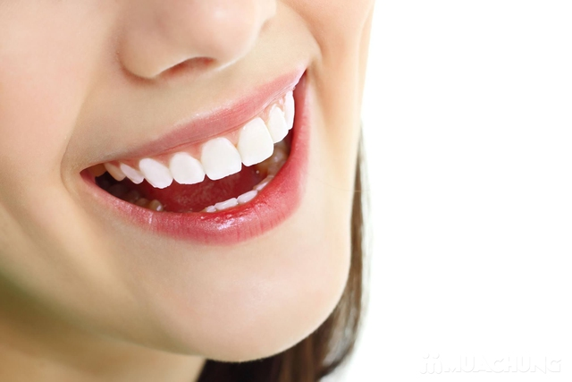 Tẩy trắng răng Laser Whiterning tại nhà - Nha Khoa Everest - 4
