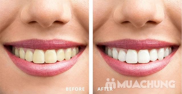 Tẩy trắng răng Laser Whiterning tại nhà - Nha Khoa Everest - 5