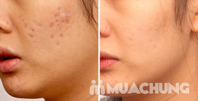 Trị sẹo rỗ đông y độc quyền tại Jennes Beauty & Spa - cam kết hiệu quả sau 1 buổi điều trị - 6
