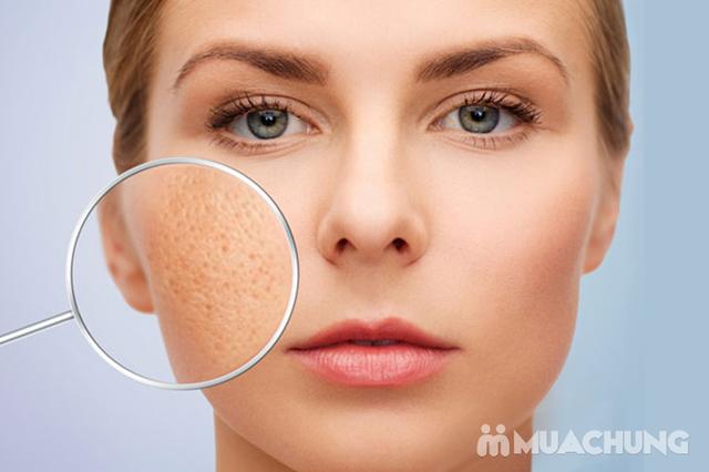 Trị sẹo rỗ đông y độc quyền tại Jennes Beauty & Spa - cam kết hiệu quả sau 1 buổi điều trị - 5