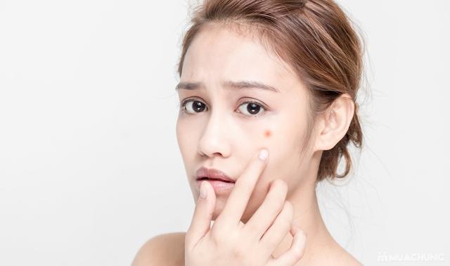 Sạch mụn không tì vết - sẵn sàng đón Tết cùng Diệu Hương Beauty Spa  - 26