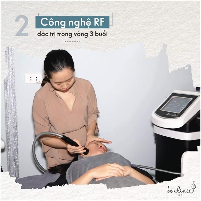 Nâng cơ xóa nhăn công nghệ sóng cao tần RF tại Thẩm mỹ Quốc Tế BeClinic - 4