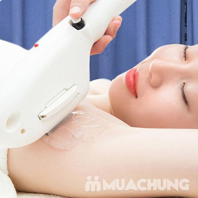Triệt lông Vĩnh Viễn CN Hàn Quốc 2019 - Hiệu quả, không đau rát tại Minh Tue's Beauty - 8