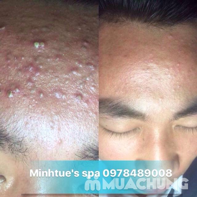 Trị mụn tận gốc, dứt điểm không tái phát, cam kết & bảo hành da sau điều trị tại Minh Tue's Beauty  - 8