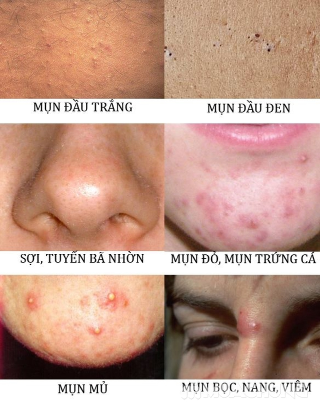 Trị Mụn chuyên sâu, thải độc khử chì hiệu quả ngay lần đầu tiên sử dụng tại Beauty Kalia  - 13