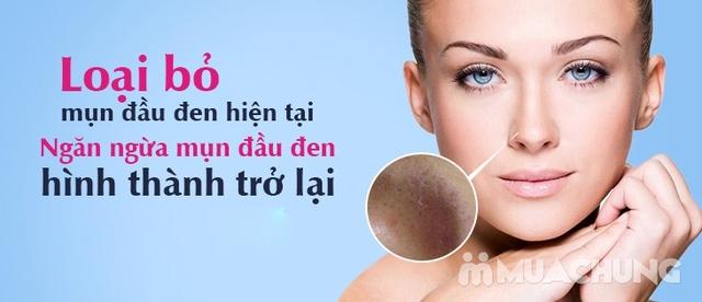 Trị Mụn chuyên sâu, thải độc khử chì hiệu quả ngay lần đầu tiên sử dụng tại Beauty Kalia  - 10