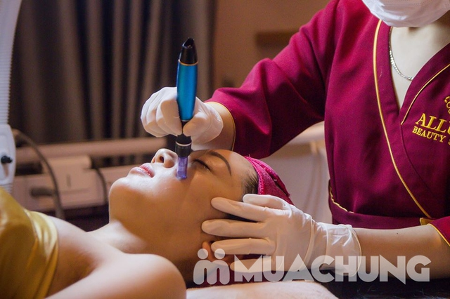 Cung cấp sức sống cho làn da nhờ công nghệ Phục hồi da HydroPeel Aqua tại Allure Beauty  - 14