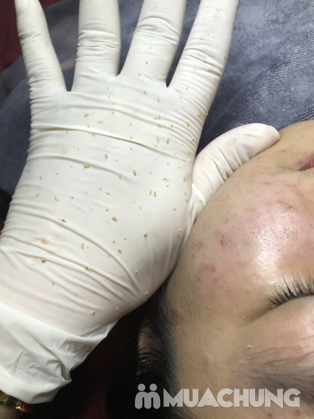Quy trình trị mụn chuyên nghiệp, đẩy lùi mụn, đón tự tin với làn da mịn màng tại Selena Beauty & Spa - 1
