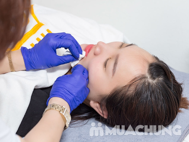 Phun thêu lông mày/ môi collagen/ mí trên hoặc dưới tại Viện thẩm mỹ Hoàng Gia - 11