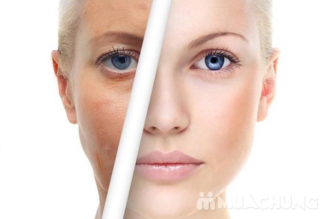 Thải độc chì trẻ hóa da, kết hợp massage tại Spa and salon Bình Minh - 1