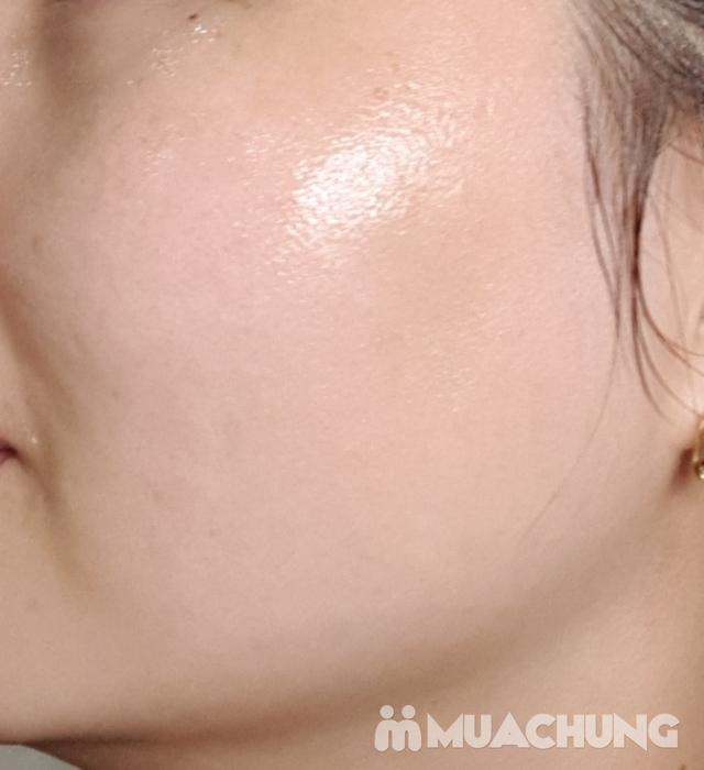 Cấy Mulwang căng bóng trắng sáng tại Viện Thẩm mỹ Hải Chi Beauty & Clinic - 8