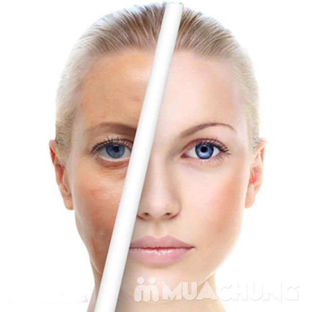 Refresh làn da với dịch vụ thải độc và hút chì da mặt tại The 2n Nail Station - 7