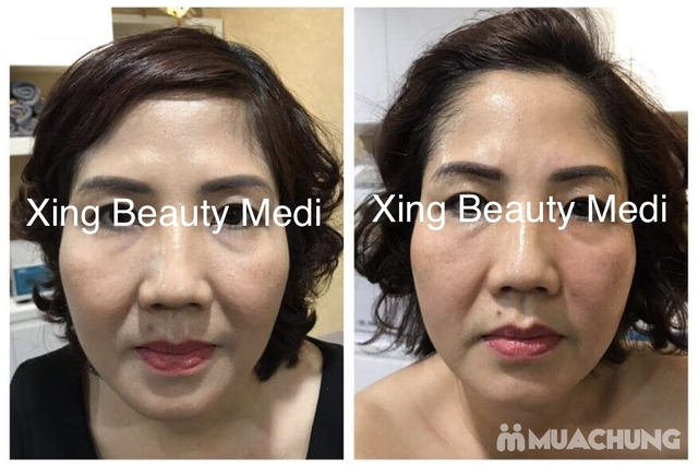 Gói nâng cơ săn chắc, căng da skin Lift  tại Xing beauty Medi - 5
