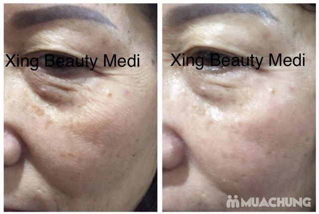 Gói nâng cơ săn chắc, căng da skin Lift  tại Xing beauty Medi - 3