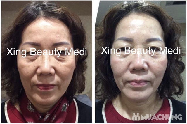Gói nâng cơ săn chắc, căng da skin Lift  tại Xing beauty Medi - 2