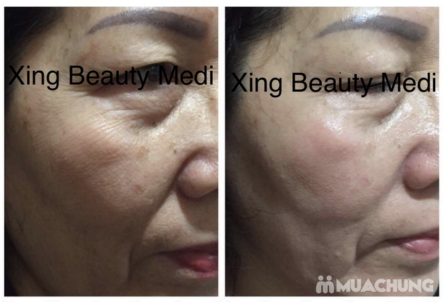 Gói nâng cơ săn chắc, căng da skin Lift  tại Xing beauty Medi - 4
