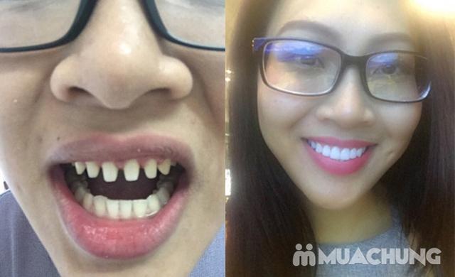 Bọc Răng Sứ Titan - Crom - Niken (Bảo Hành 2 Năm) Miễn Phí Chụp Phim Panorama Chỉ Có Tại Nha Khoa Thẩm Mỹ Quốc Tế Uni Dental - 9