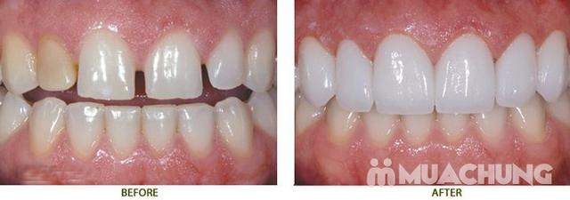 Bọc Răng Sứ Titan - Crom - Niken (Bảo Hành 2 Năm) Miễn Phí Chụp Phim Panorama Chỉ Có Tại Nha Khoa Thẩm Mỹ Quốc Tế Uni Dental - 10