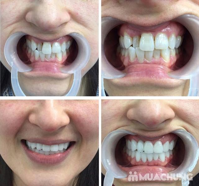Bọc Răng Sứ Titan - Crom - Niken (Bảo Hành 2 Năm) Miễn Phí Chụp Phim Panorama Chỉ Có Tại Nha Khoa Thẩm Mỹ Quốc Tế Uni Dental - 6