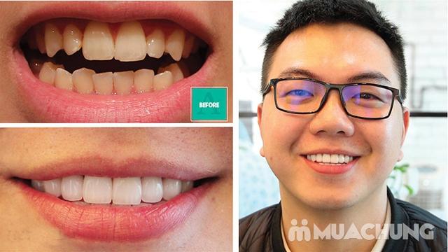 Bọc Răng Sứ Titan - Crom - Niken (Bảo Hành 2 Năm) Miễn Phí Chụp Phim Panorama Chỉ Có Tại Nha Khoa Thẩm Mỹ Quốc Tế Uni Dental - 7