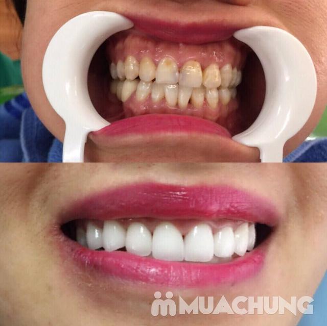 Bọc Răng Sứ Titan - Crom - Niken (Bảo Hành 2 Năm) Miễn Phí Chụp Phim Panorama Chỉ Có Tại Nha Khoa Thẩm Mỹ Quốc Tế Uni Dental - 13