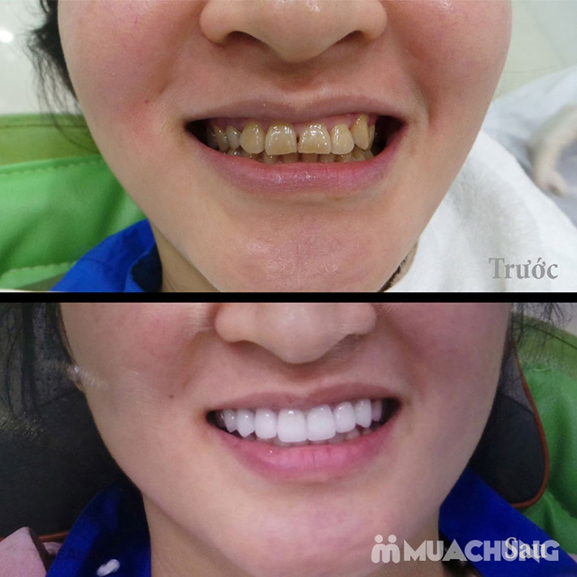 Bọc Răng Sứ Titan - Crom - Niken (Bảo Hành 2 Năm) Miễn Phí Chụp Phim Panorama Chỉ Có Tại Nha Khoa Thẩm Mỹ Quốc Tế Uni Dental - 8