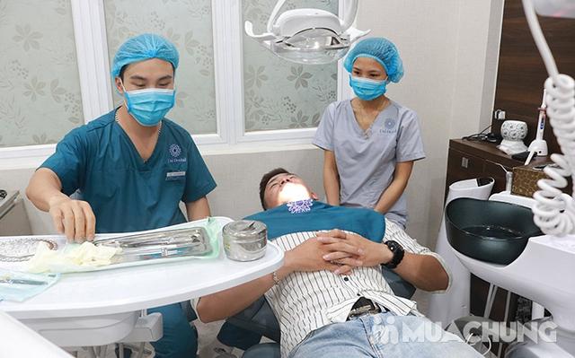 Bọc Răng Sứ Titan - Crom - Niken (Bảo Hành 2 Năm) Miễn Phí Chụp Phim Panorama Chỉ Có Tại Nha Khoa Thẩm Mỹ Quốc Tế Uni Dental - 2