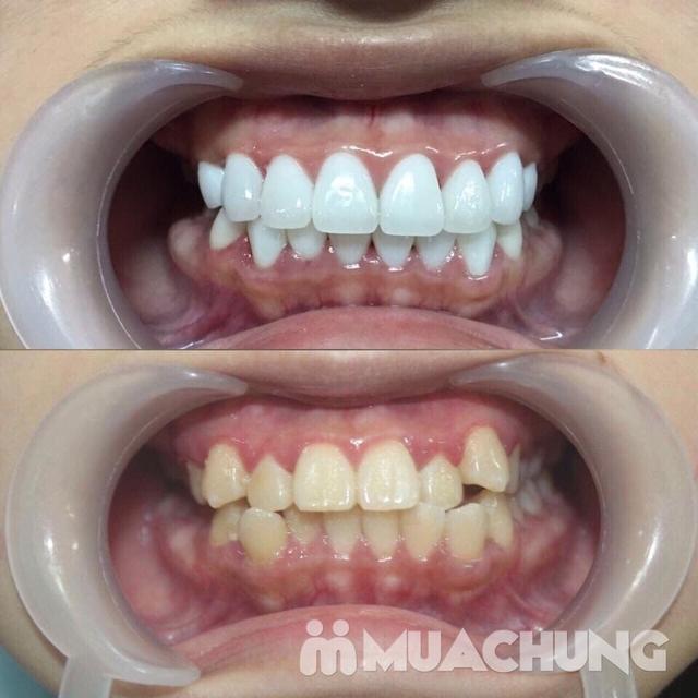 Bọc Răng Sứ Titan - Crom - Niken (Bảo Hành 2 Năm) Miễn Phí Chụp Phim Panorama Chỉ Có Tại Nha Khoa Thẩm Mỹ Quốc Tế Uni Dental - 12