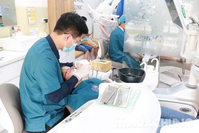 Bọc răng sứ Titan-Crom-Niken + Miễn phí chụp phim Panorama tại Nha Khoa Thẩm Mỹ Quốc Tế Uni Dental - 6