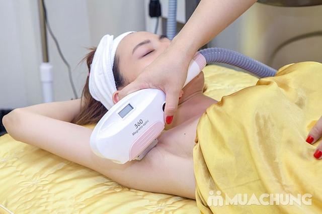 6 buổi triệt lông vĩnh viễn CN Diode Lazer cam kết hiệu quả 100%  tại Emily Trịnh Beauty & Spa - 9