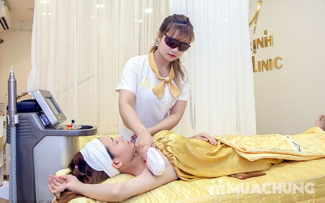 6 buổi triệt lông vĩnh viễn CN Diode Lazer cam kết hiệu quả 100%  tại Emily Trịnh Beauty & Spa - 8