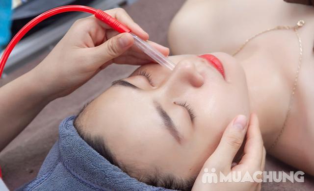 Lựa Chọn 1 Trong 3 Dịch Vụ: Chăm Sóc Da Đá Nóng/ Trị Mụn/ Massage Body Cùng Lotus Beauty - Cosmetics (Áp Dụng Cả Nam Và Nữ) - 28