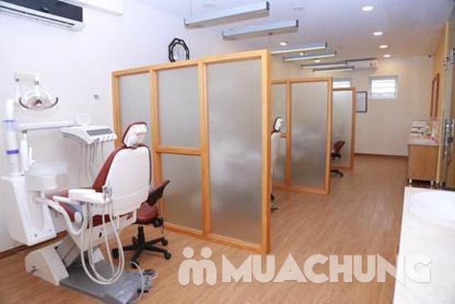 Dịch vụ nhổ Răng khôn ( Răng số 8) + lấy cao răng và đánh bóng răng - 12