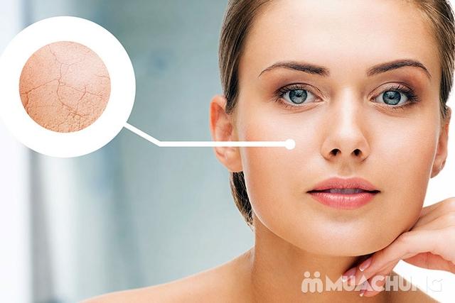 Cấy Mulgwang siêu trắng cho da sáng đẹp tự Nhiên tại Doctor Skin Spa - 4