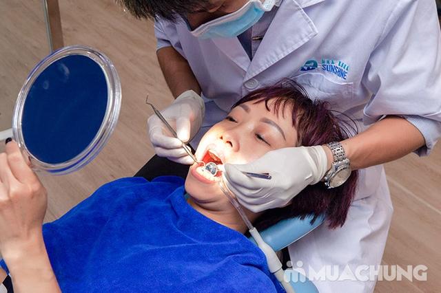 Tẩy trắng răng Whitening Max Plux, Không Ê Buốt, Bảo vệ Nướu, Men răng tại Nha Khoa Thẩm Mỹ Sunshine - 10