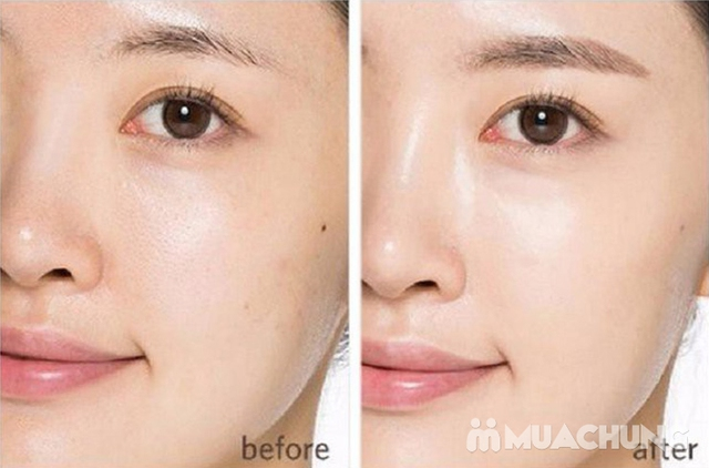 Cấy Mulgwang siêu trắng cho da sáng đẹp tự Nhiên tại Doctor Skin Spa - 6
