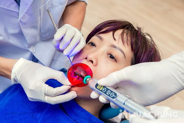 Tẩy trắng răng Whitening Max Plux, Không Ê Buốt, Bảo vệ Nướu, Men răng tại Nha Khoa Thẩm Mỹ Sunshine - 12