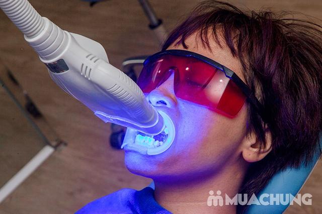 Tẩy trắng răng Whitening Max Plux, Không Ê Buốt, Bảo vệ Nướu, Men răng tại Nha Khoa Thẩm Mỹ Sunshine - 13
