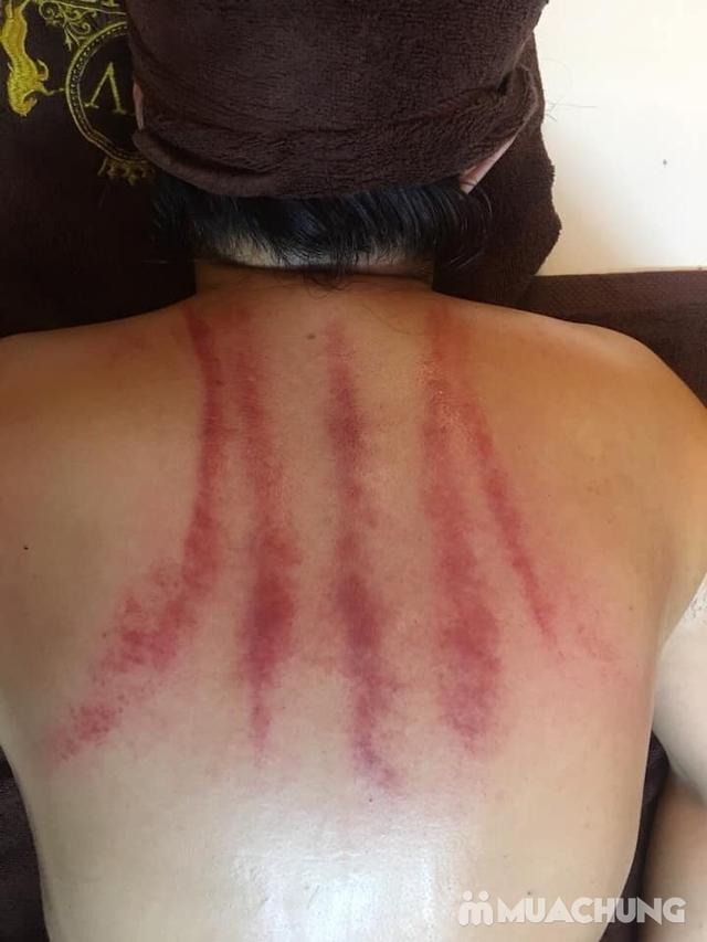 Trị liệu chuyên sâu đau mỏi cổ/vai/gáy - đánh tan mệt mỏi sau buổi đầu tiên tại Dưỡng tâm MV Beauty - 1