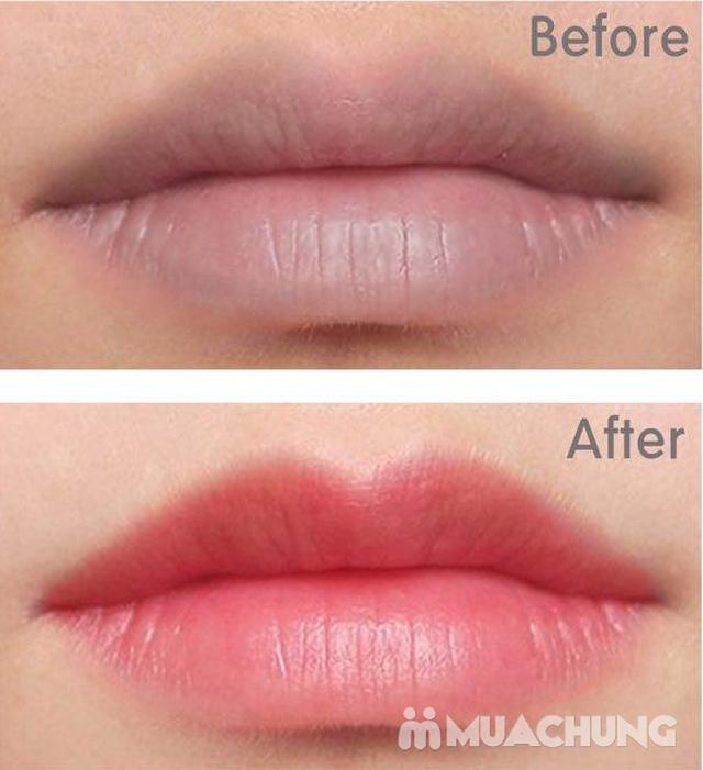 Phun môi collagen căng mọng + tặng 1 lần nối mi hoặc uốn mi tại Lilian Spa - 7