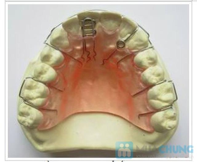 Phiếu dịch vụ chỉnh nha tháo lắp răng tại Nha khoa Hà Nội - 4