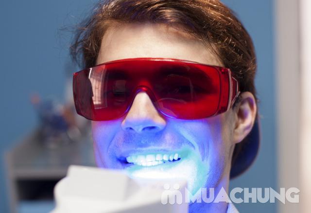 Tẩy trắng răng nhanh công nghệ Laser Whitening tại Nha khoa Giảng Võ - 1