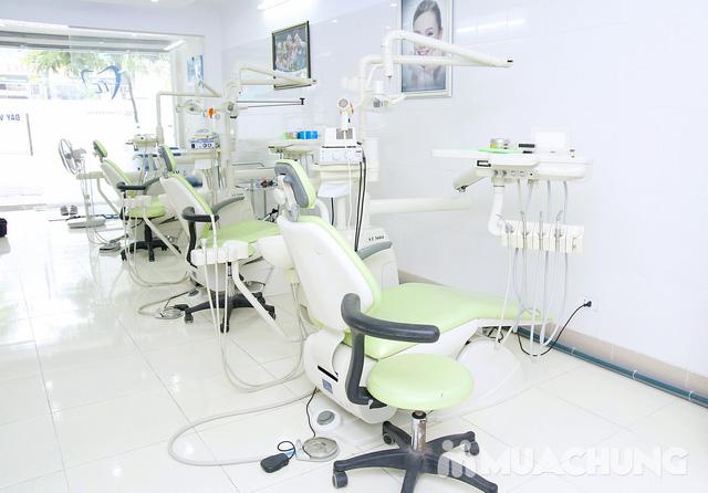 Bọc răng sứ kim loại Titanium Mỹ - Bảo hành 1 năm tại Nha khoa Thu Lan - 6